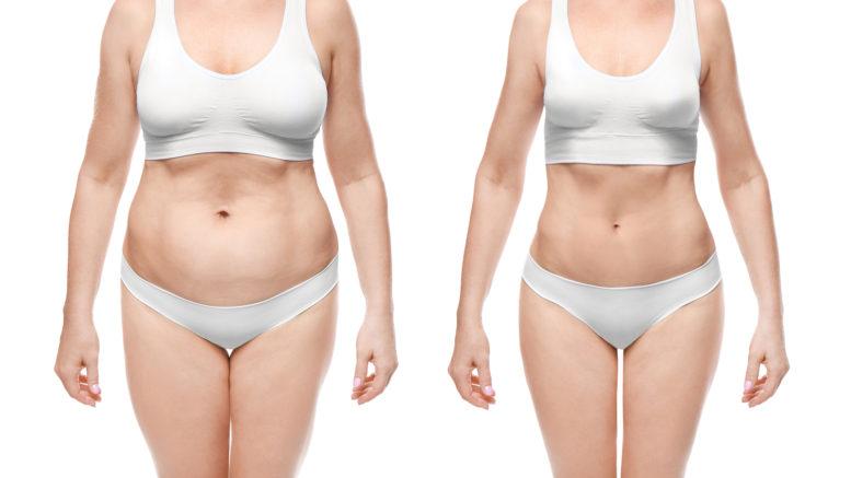 cum să pierzi grăsime în jurul corpului superior starea de sănătate pierderea în greutate